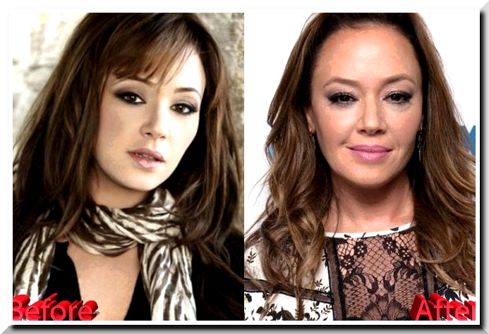 Leah Remini Plastic Surgery Scandals – Natural Bra Size or Botox Injections?