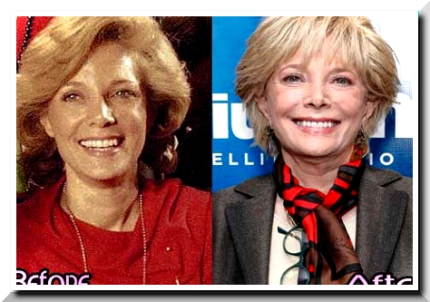Lesley Stahl Before and After Plastic Surgery- A Facelift Scandals?